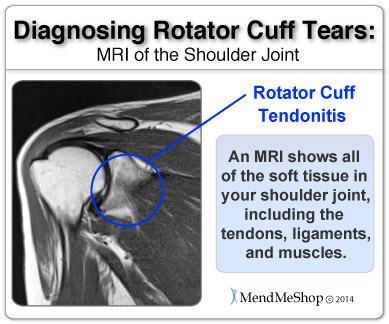 shoulder meniscus mri