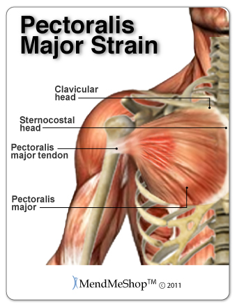 pectoralis major tendon and muscle rupture