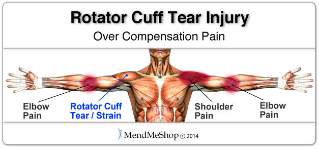 Over compensation pain can result in a severe setback when recovering from a rotator cuff tear.