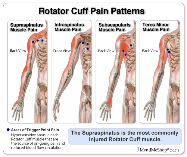 Rotator cuff pain can translate into trigger point pain - which are hypersensitive areas in the muscle that are the source of on-going pain.