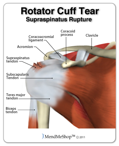 How To Deal With Supraspinatus Tears Symptoms Injury Recovery