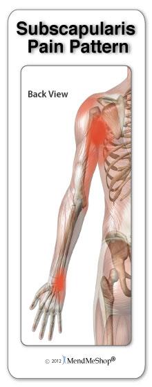 Pain pattern subscapularis