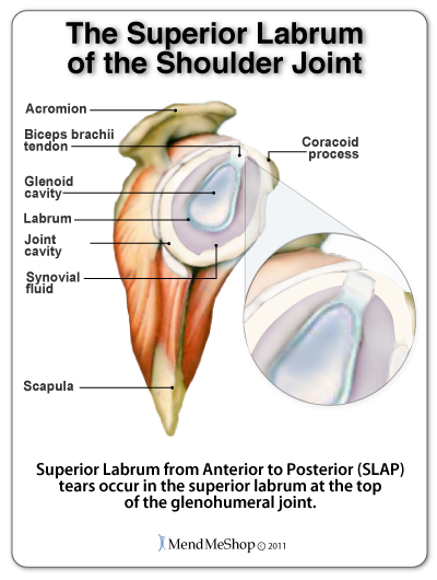 aidmyrotatorcuff com slap superior labrum anterior to posterior tear rh aidmyrotatorcuff com slap repair diagram slap lesion diagram