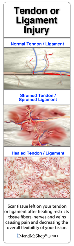 Rotator cuff tears will heal with massive amounts of scar tissue.