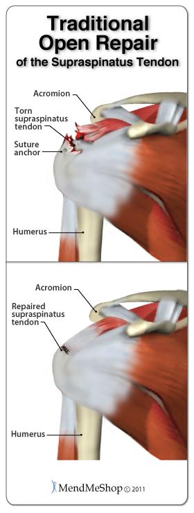 Supraspinatus rotator cuff tear surgery recovery.